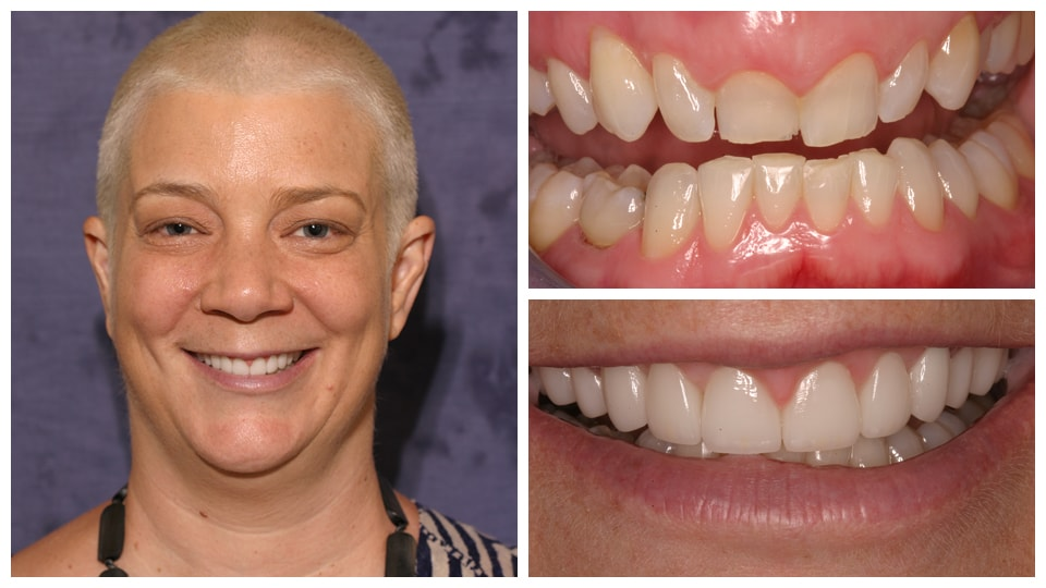 3 photos of a woman showing before and after dental work