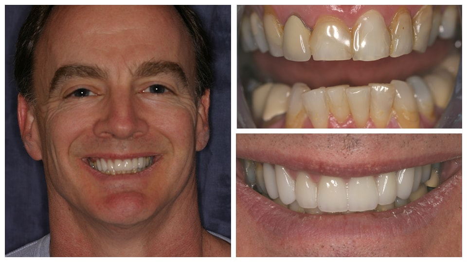 3 photos of a man showing before and after dental work