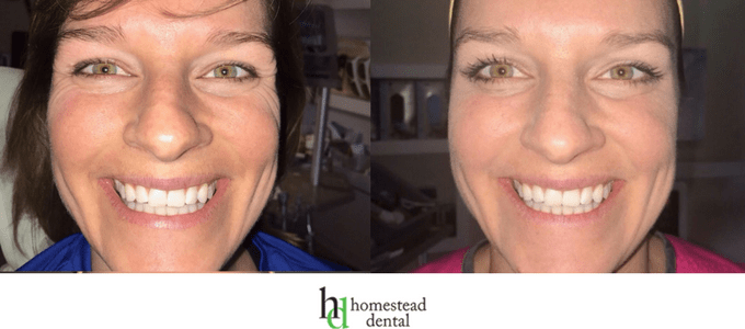 Before and after results of botox injections from Homestead Dental