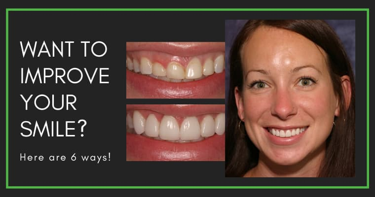 "Before and after smile photos of a cosmetic dentistry patient at Homestead Dental with the text ""Want to improve your smile? Here are 6 ways!"""
